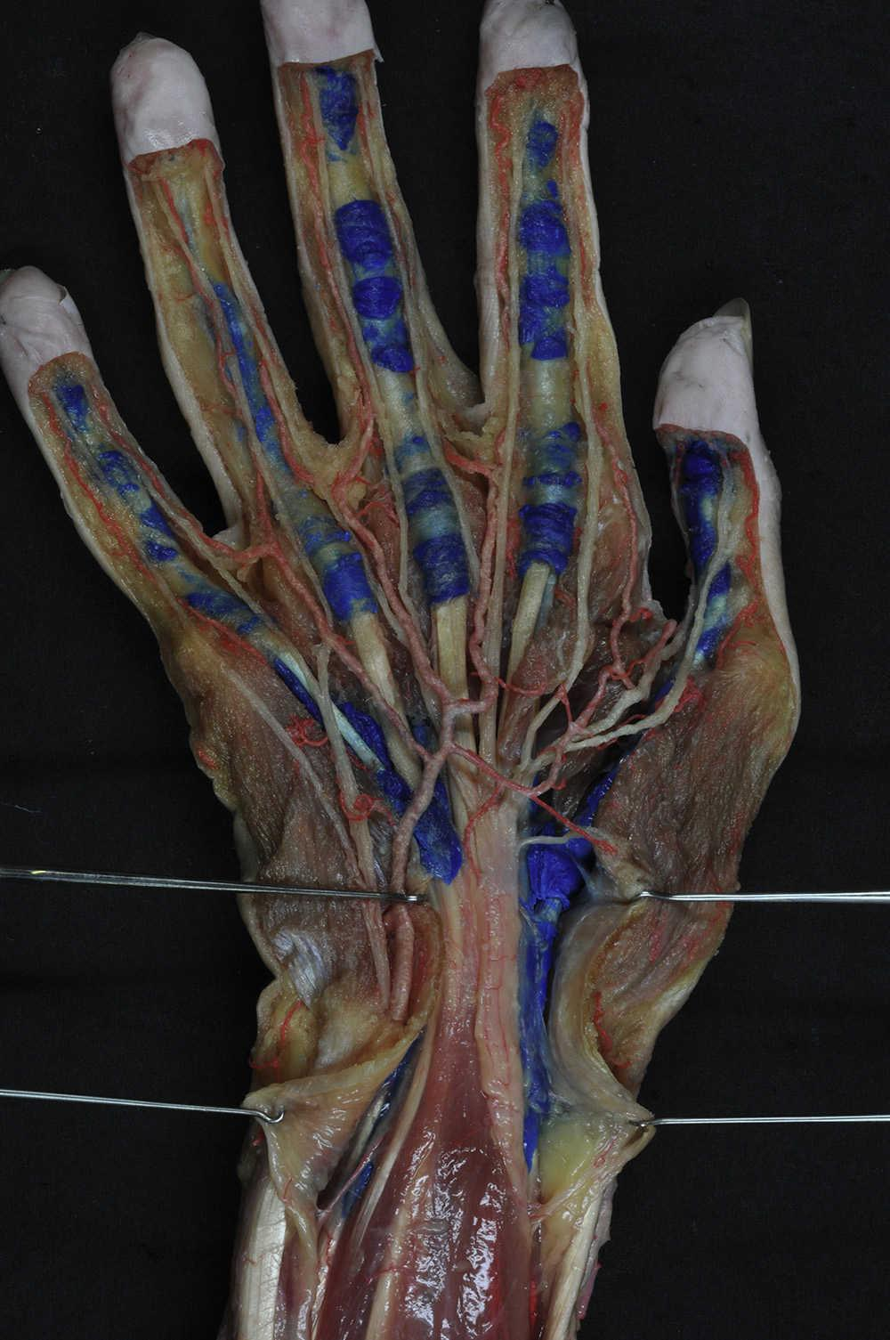 Anatomía aplicada a la cirugía de los tendones flexores | Revista ...