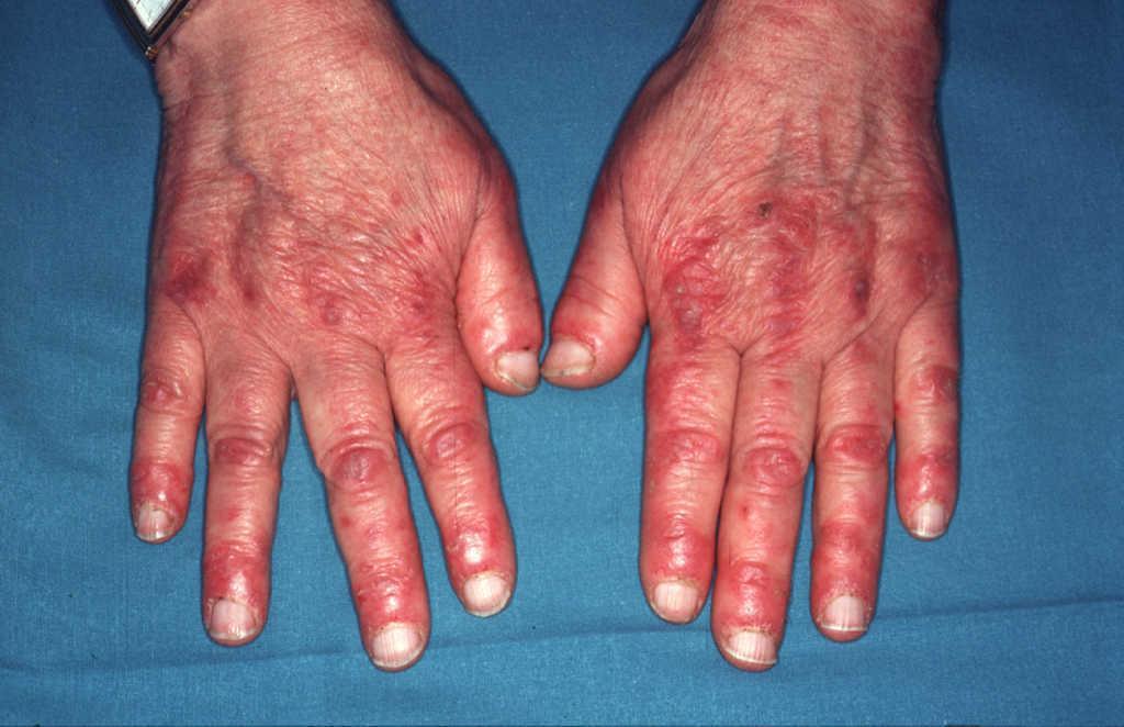 dermografismo autoinmune