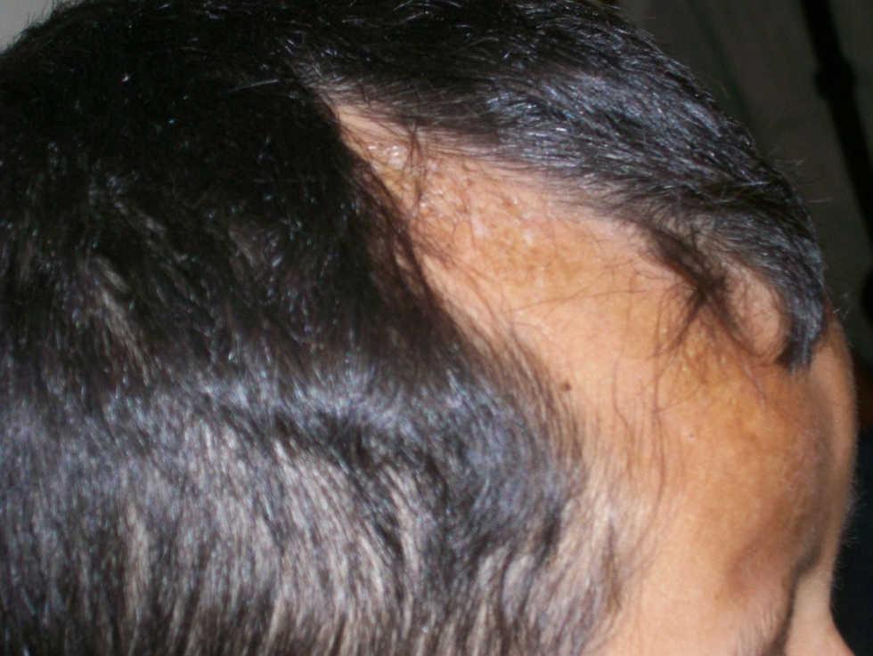imagenes de esclerodermia morfea