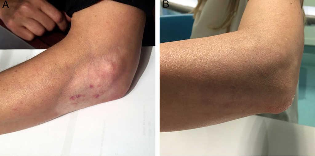 Treatment Of Persistent Cutaneous Atrophy After Corticosteroid