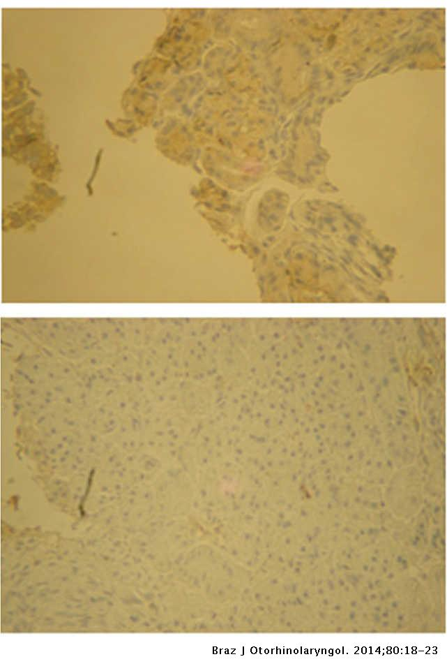 Influence of estradiol administration on estrogen receptors