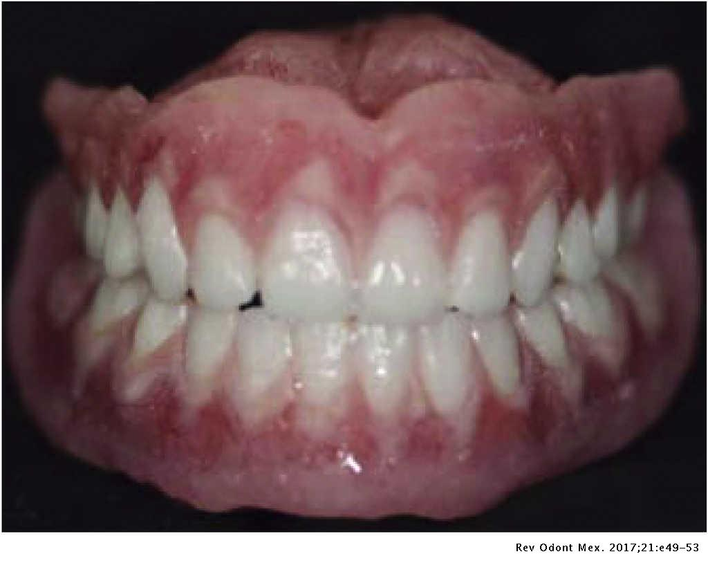 Prosthodontic treatment of patients afflicted with