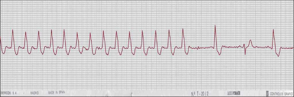 Paroxysmal Supraventricular Tachycardias And Preexcitation Syndromes Revista Espanola De Cardiologia
