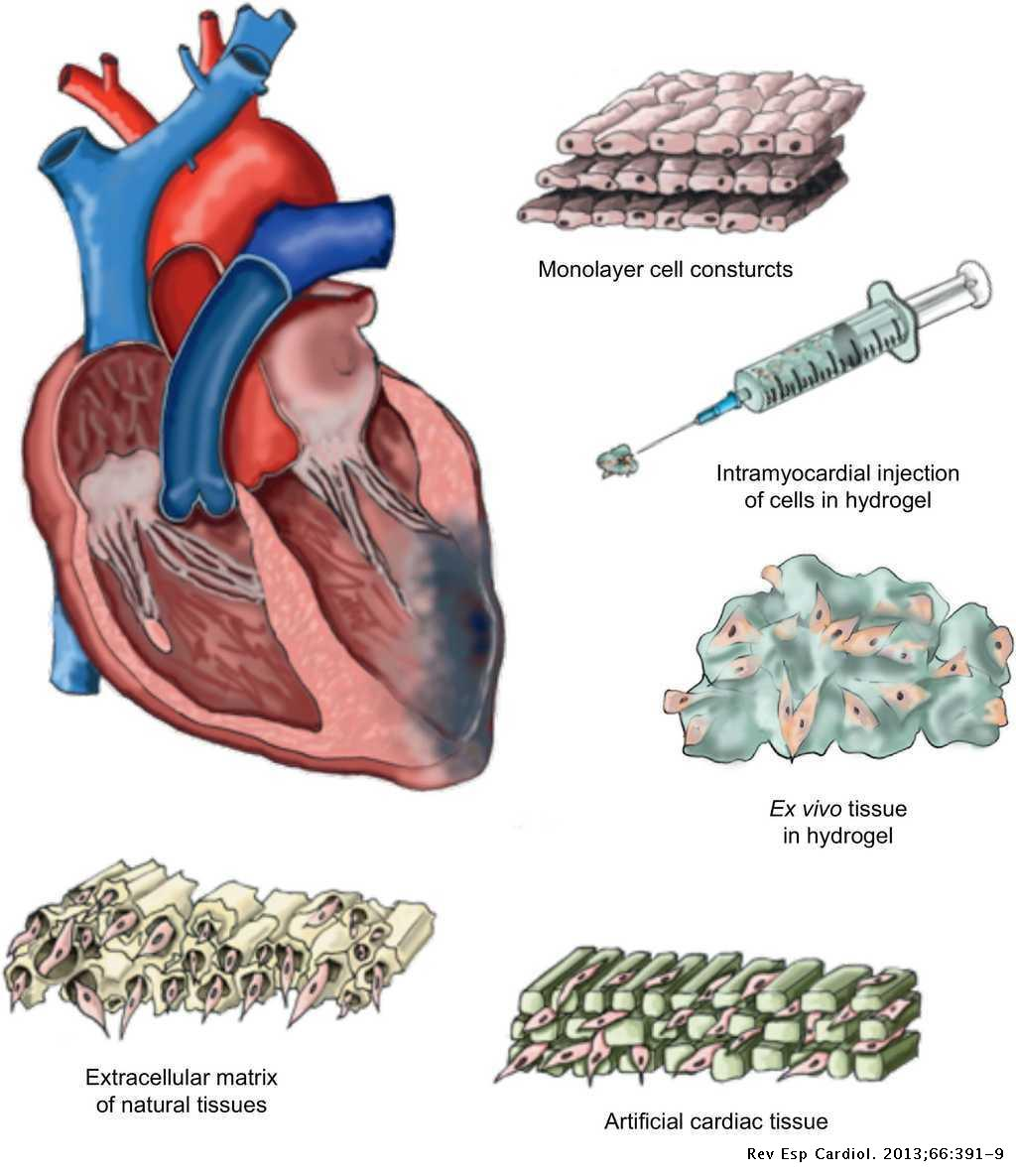 Cardiac Tissue Engineering and the Bioartificial Heart