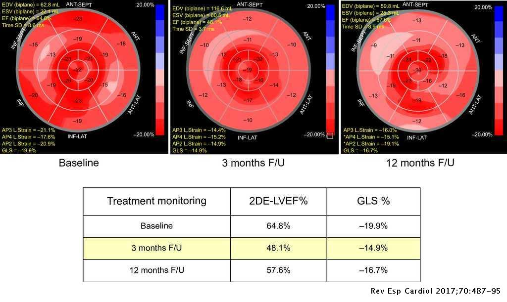 Emerging Cardiac Imaging Modalities for the Early Detection of