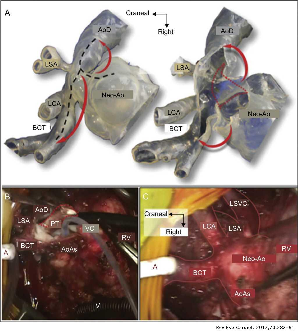 Three-dimensional Printed Cardiac Models: Applications in the Field