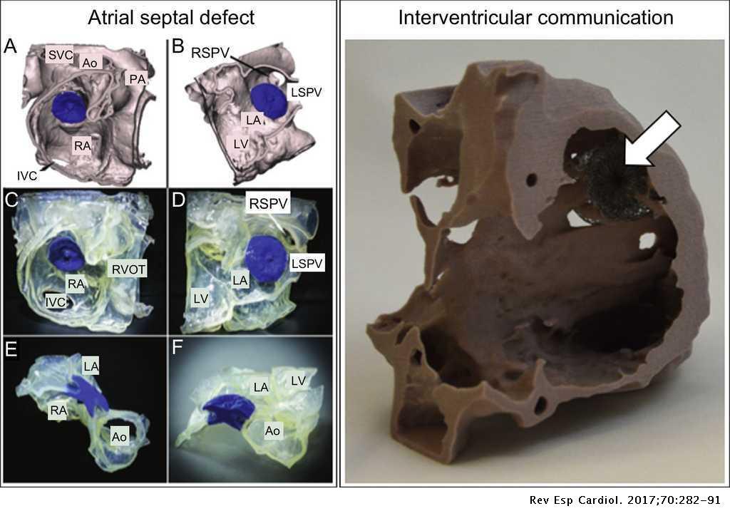 Three-dimensional Printed Cardiac Models: Applications in
