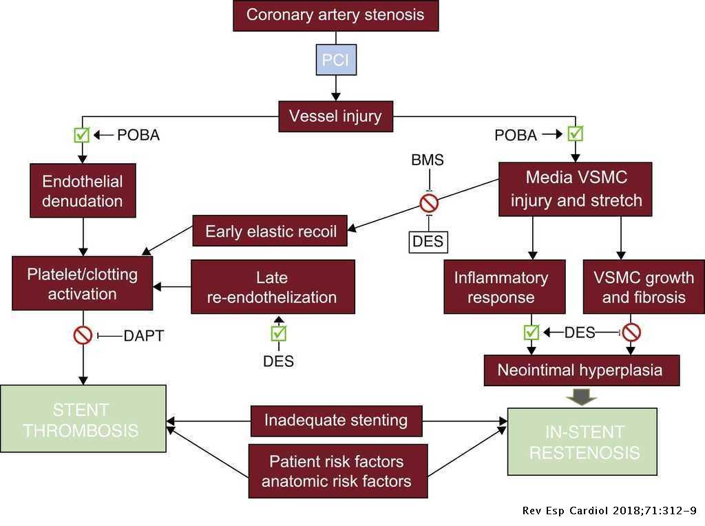 A Brief History of Coronary Artery Stents | Revista Española de