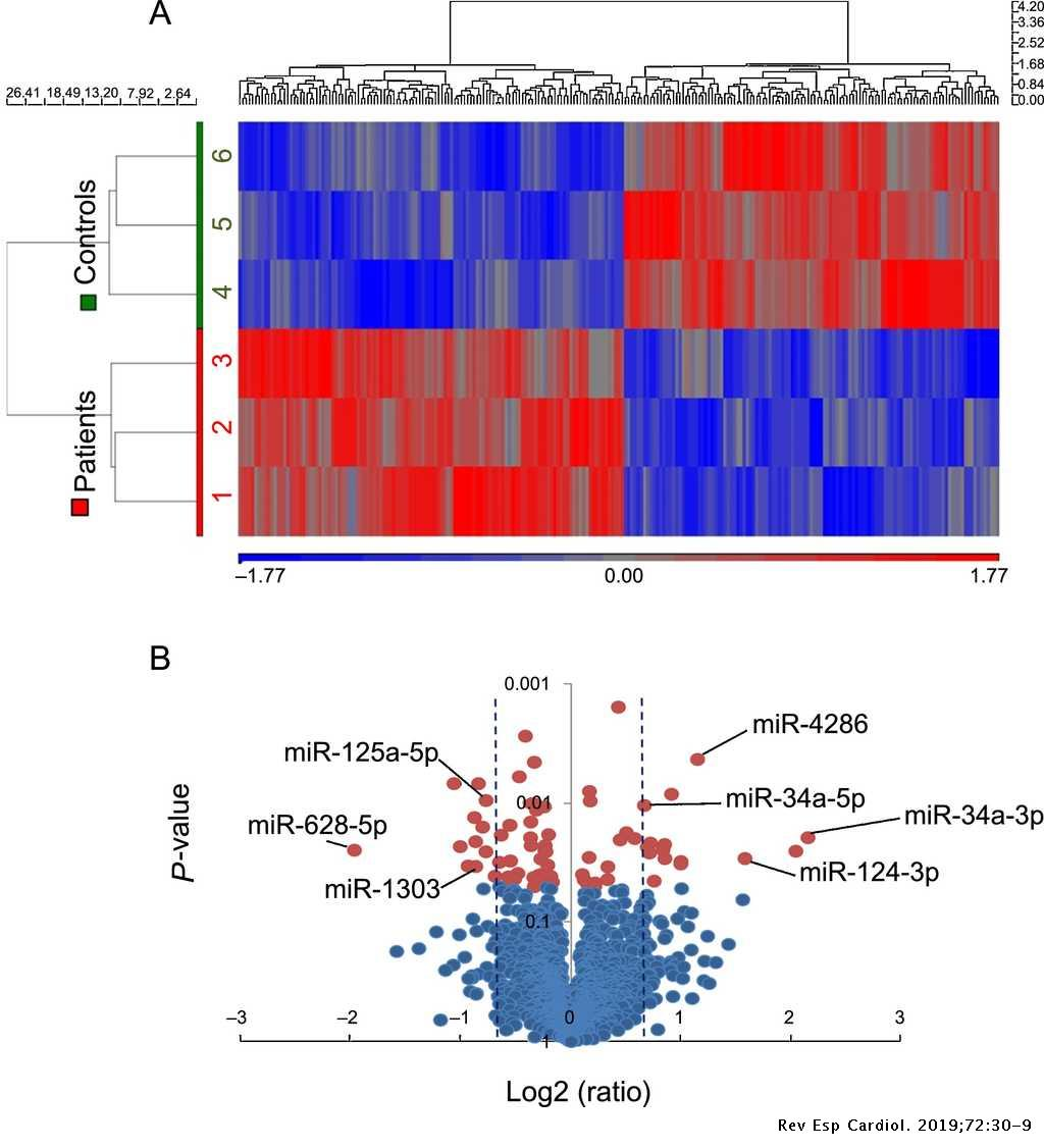 Thickness and an Altered miRNA Expression in the Epicardial Adipose