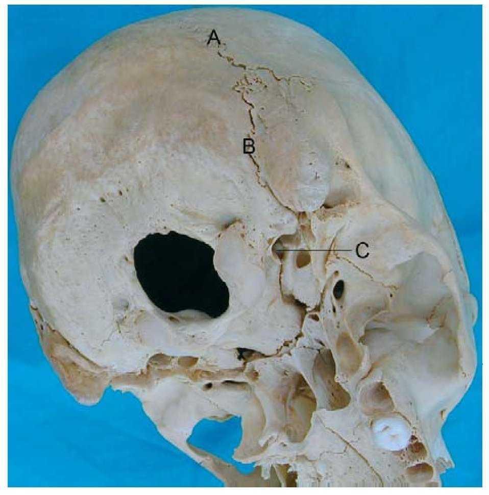 Objetivación de las diferencias en la movilidad del cráneo a través ...
