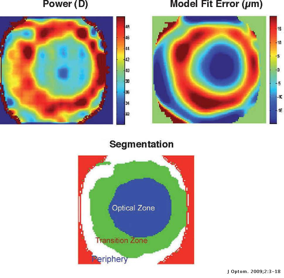 The Optical Design of the Human Eye: a Critical Review