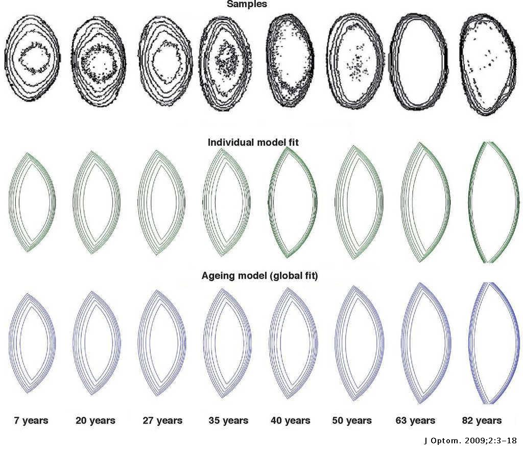 The Optical Design Of The Human Eye A Critical Review
