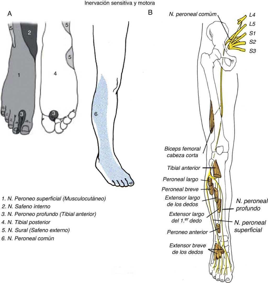 Esguince de tobillo de primer grado como causa de paresia del nervio ...