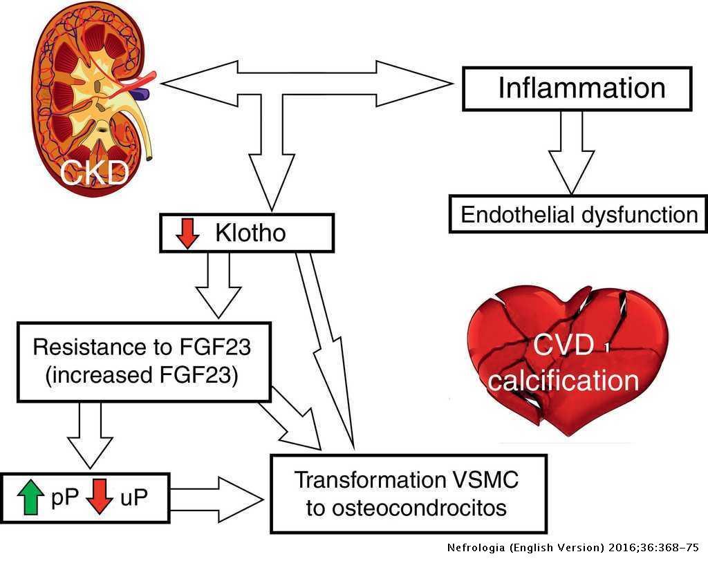 Bone mineral disorder in chronic kidney disease: Klotho and