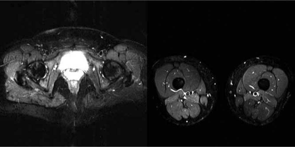 Estudio de miopatía por resonancia magnética | Imagen Diagnóstica