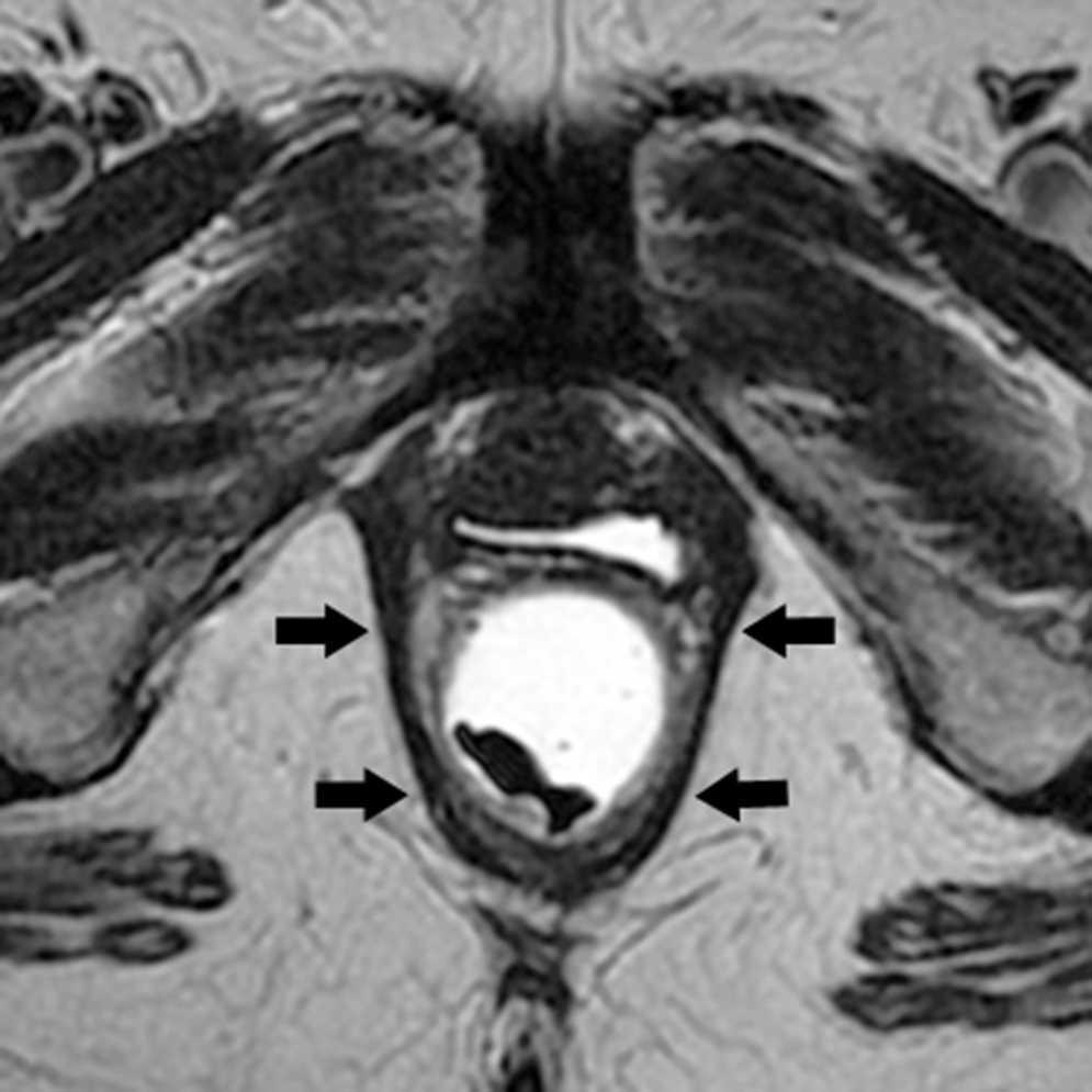 Defecografía mediante resonancia magnética: estudio anatómico y ...