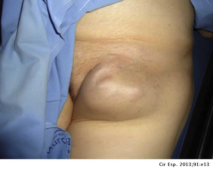 Groin lumps in Swollen lymph