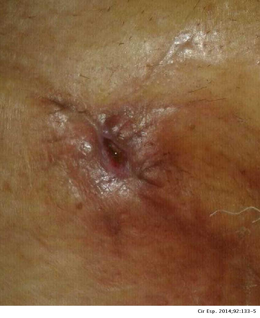Negative Pressure Therapy for the Treatment of Inguinal Lymphatic