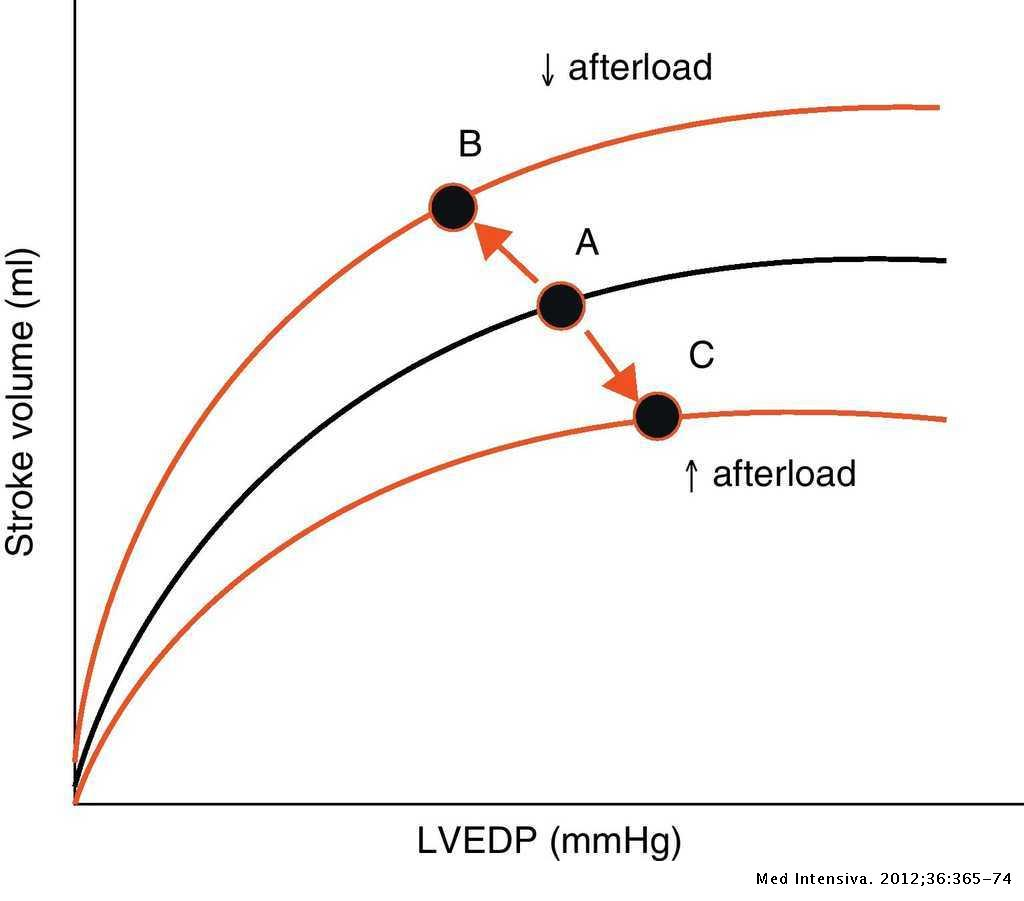 Evaluation of contractility and postloading in the intensive care