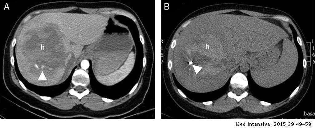 Handlebar Sign Pancreatic Rupture