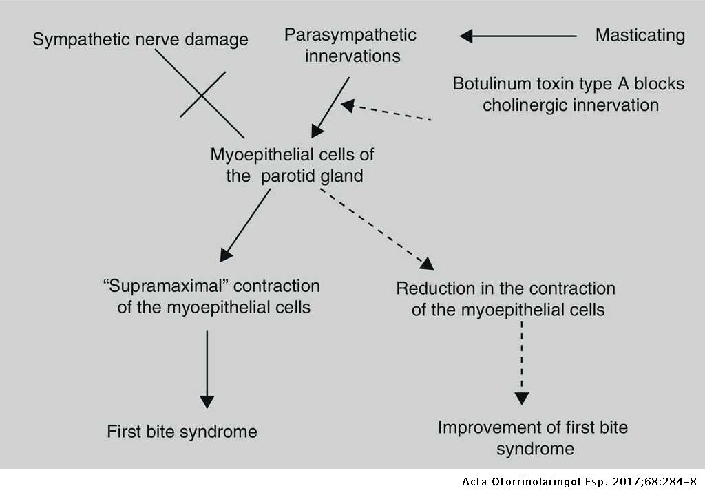 Treatment of the First Bite Syndrome   Acta
