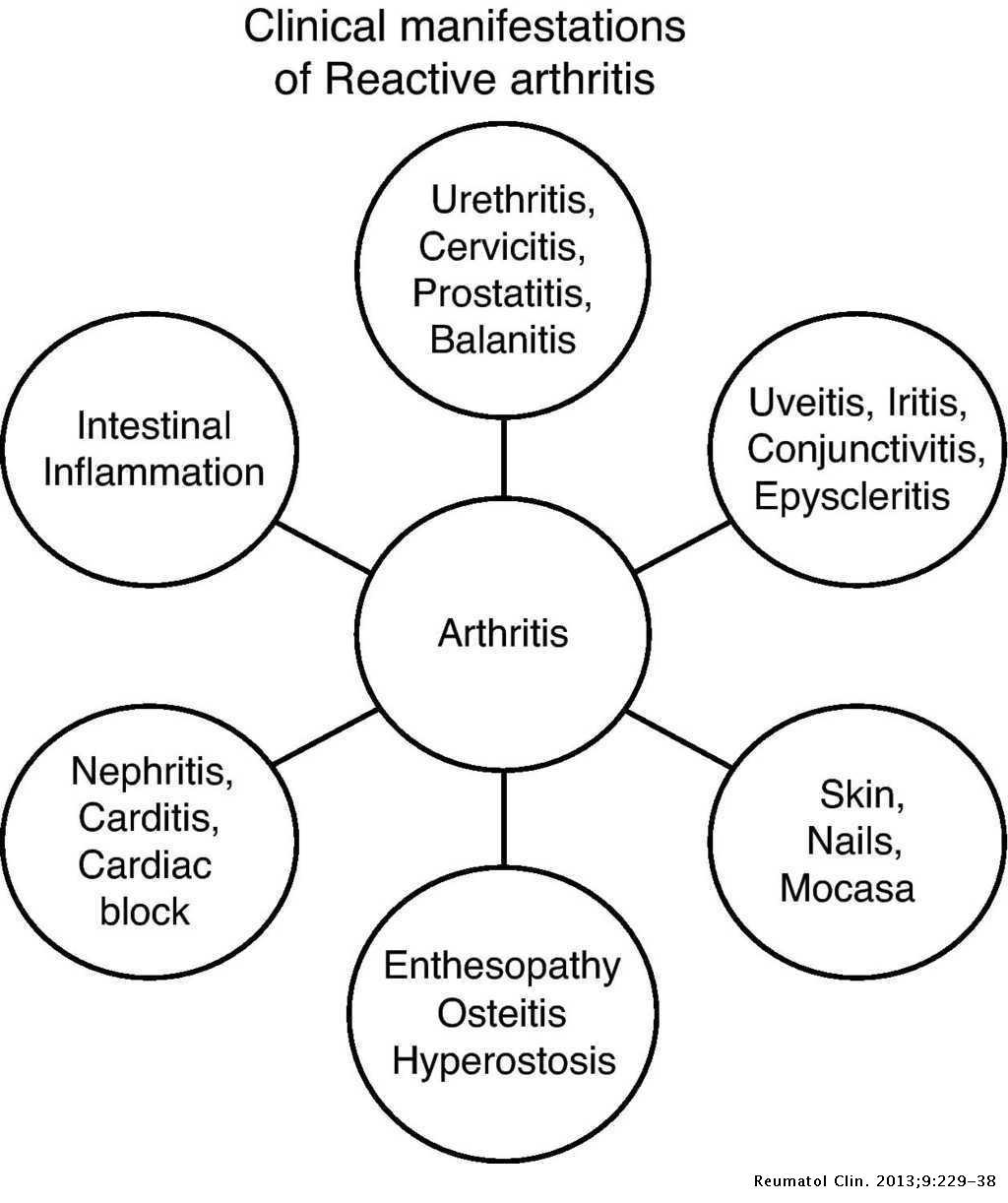 Prosztatagyulladás és kreatinin - A kreatinin emelkedik a prosztata gyulladásával