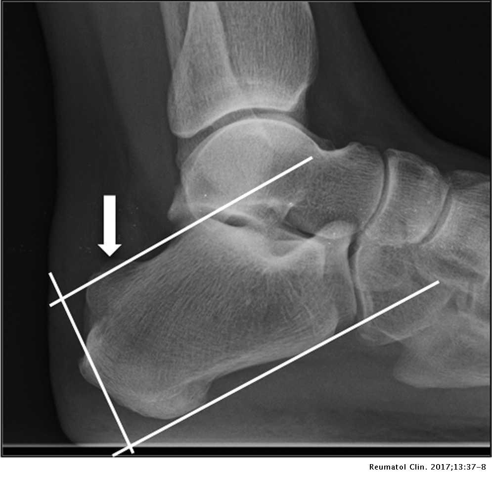 achilles tendonitis magyarul