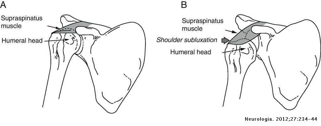 Painful hemiplegic shoulder in stroke patients: Causes and