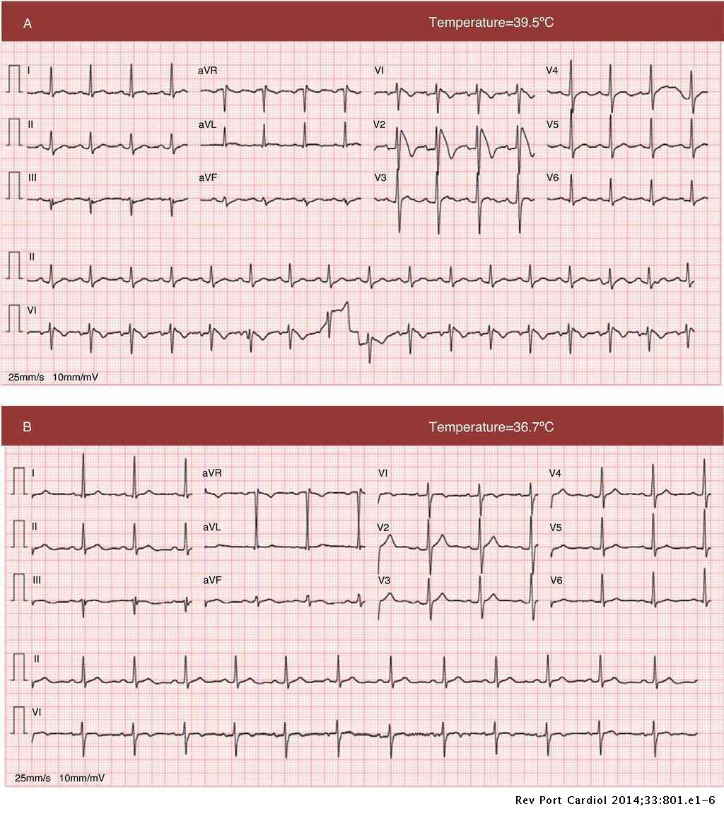 Syncope In A Febrile State A Case Report Of Brugada Syndrome