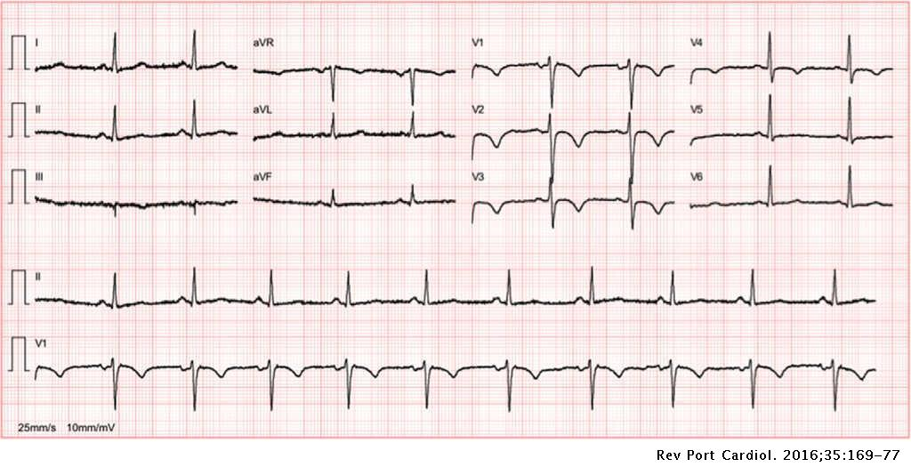 Electrocardiographic evaluation in athletes: 'Normal