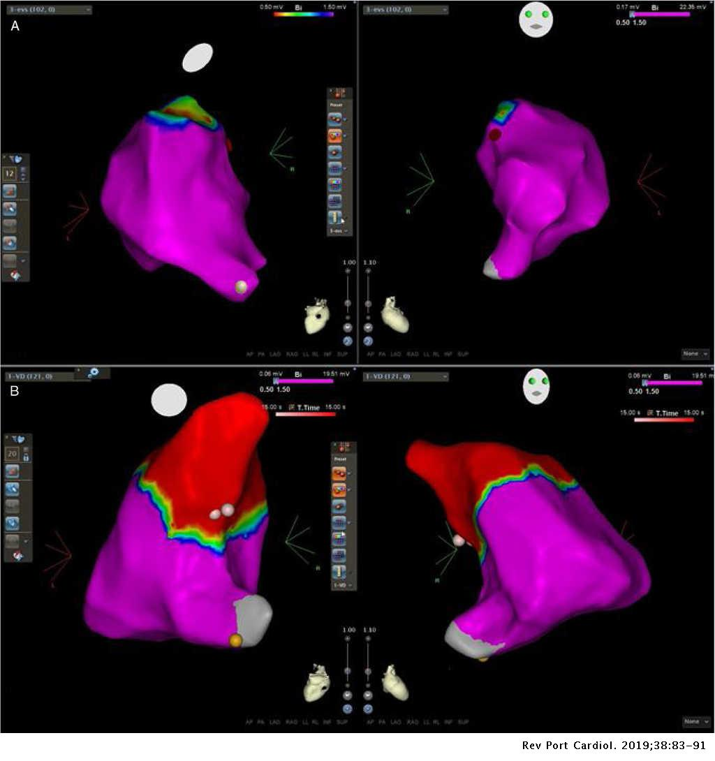 right ventricular outflow tract