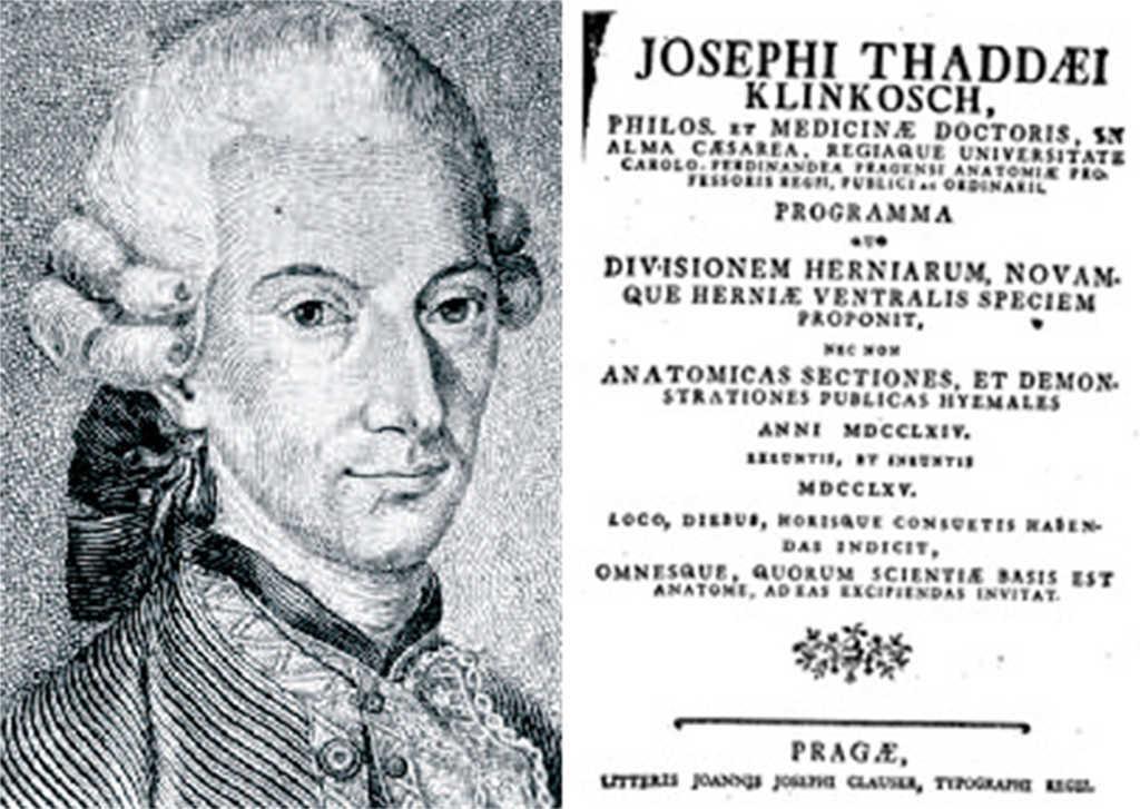 Controversias históricas de las hernias semilunares: Spiegel frente ...