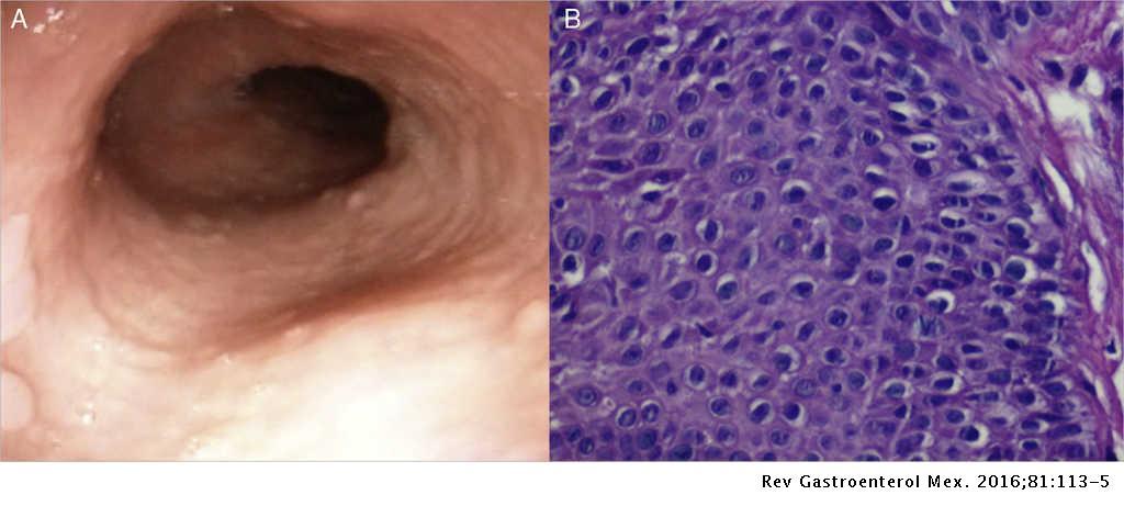Proton pump inhibitor-responsive esophageal eosinophilia: A