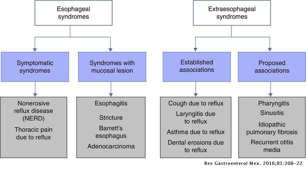 Diagnosis and treatment of gastroesophageal reflux disease