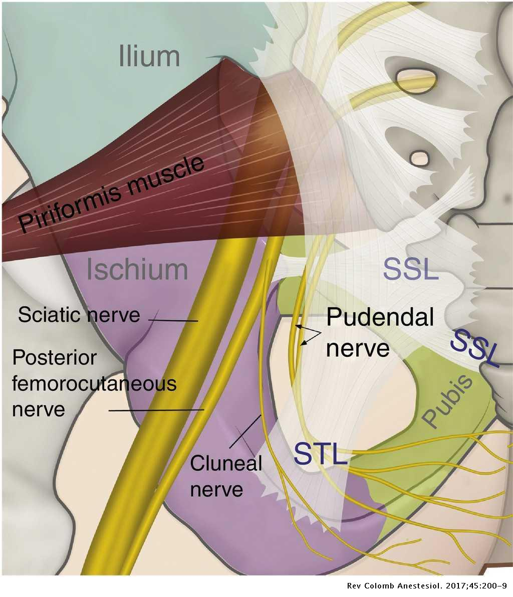 Regional anesthesia guided by ultrasound in the pudendal