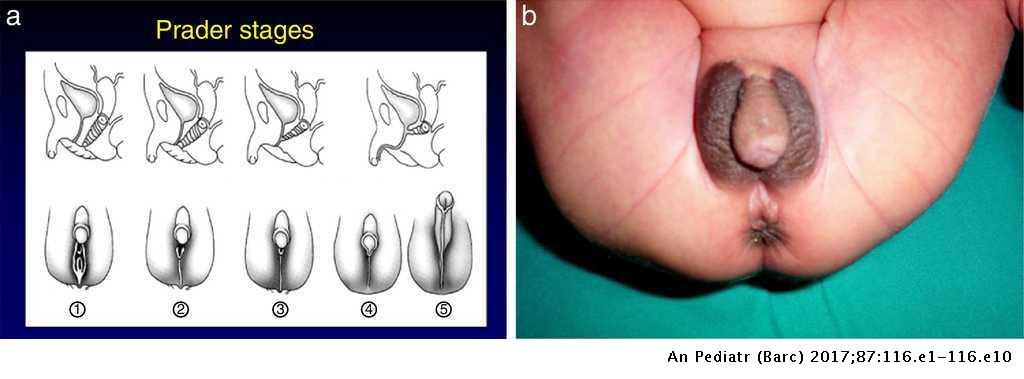 prader 1: female external genitalia