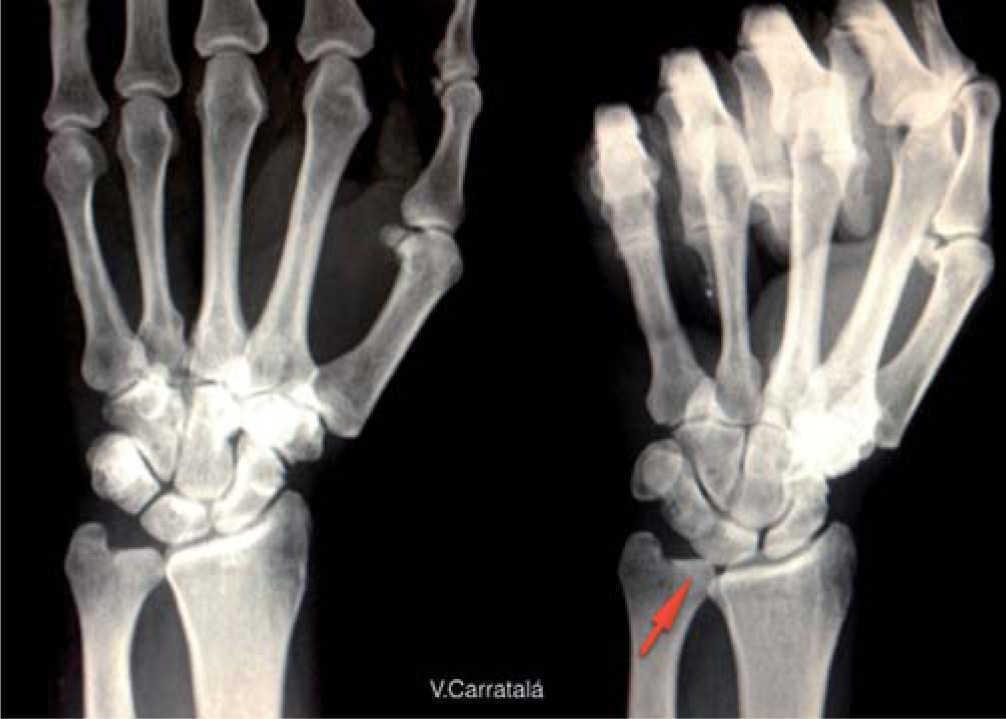 Síndrome de impactación ulnocarpiano, manejo artroscópico | Revista ...