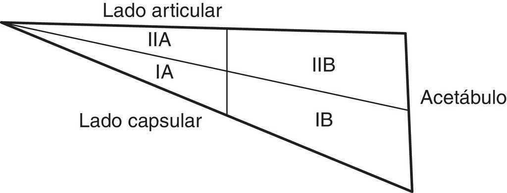 Lesiones del labrum de cadera: vascularización y técnicas de ...