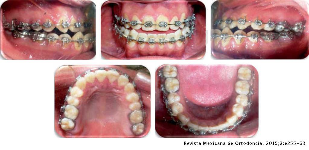 Orthodontic-surgical correction of a class III malocclussion