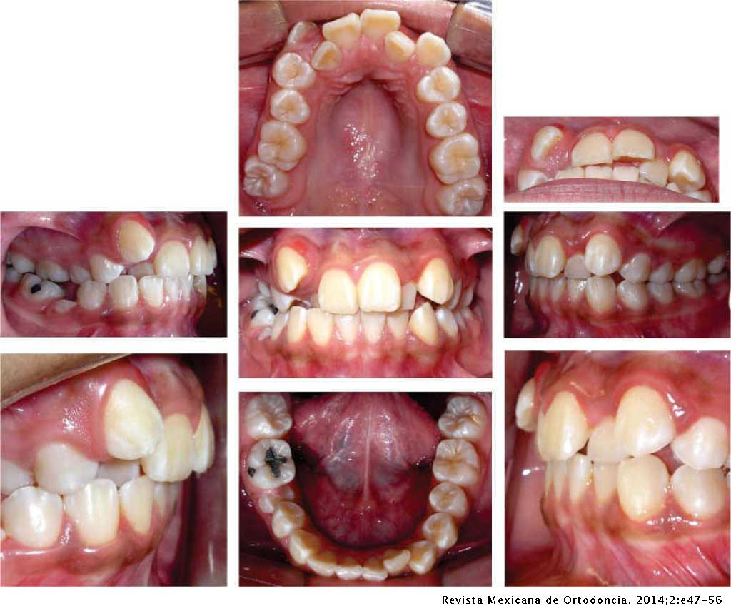 Orthopedic expansion with orthodontic mini-implants: Case
