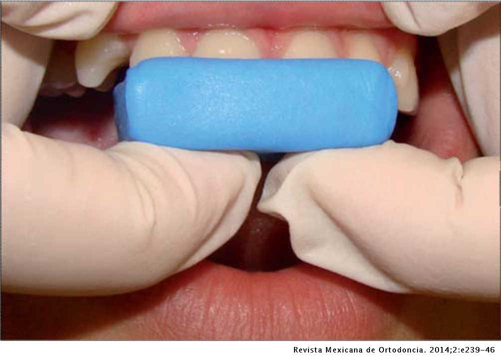 Comparison between two techniques for registering mandibular