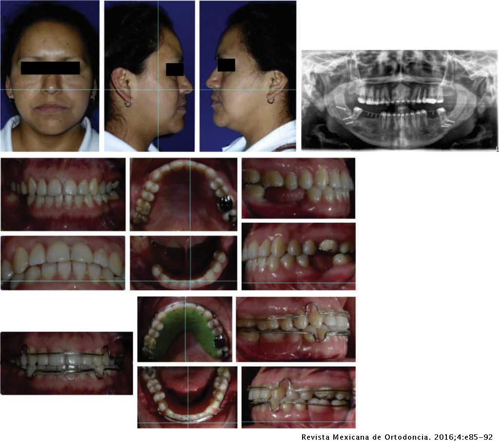 Surgical-orthodontic treatment in a class II malocclusion