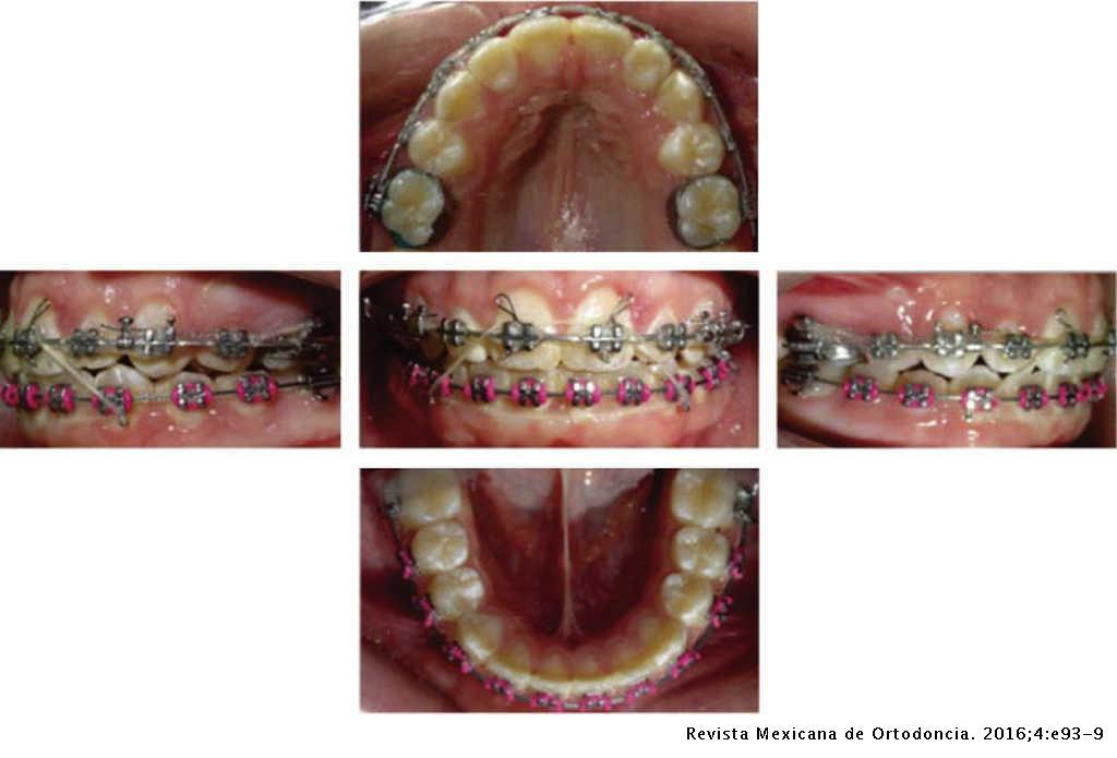 Anterior open bite correction in a skeletal class II patient  Case