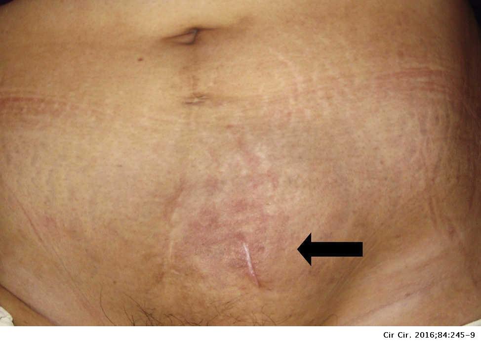 Cancerul endometrial – Spitalul Universitar de Urgenţă Militar Central Dr. Carol Davila