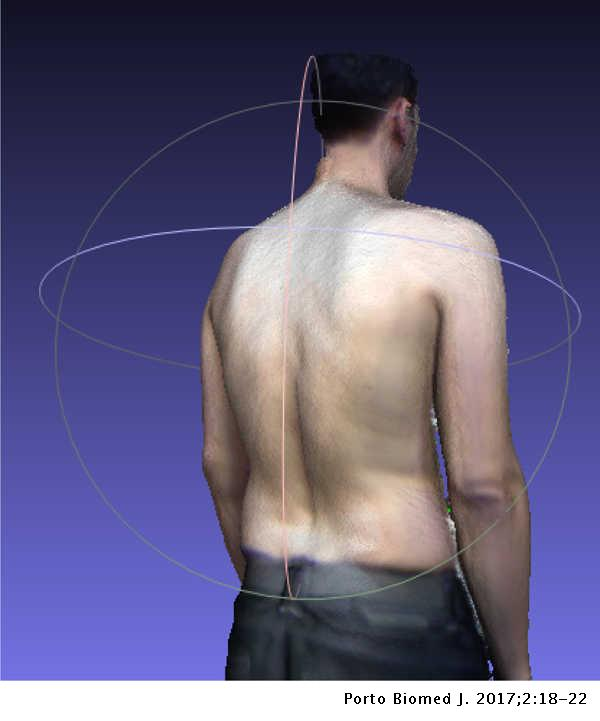 Evaluation of spinal posture using Microsoft Kinect™: A preliminary