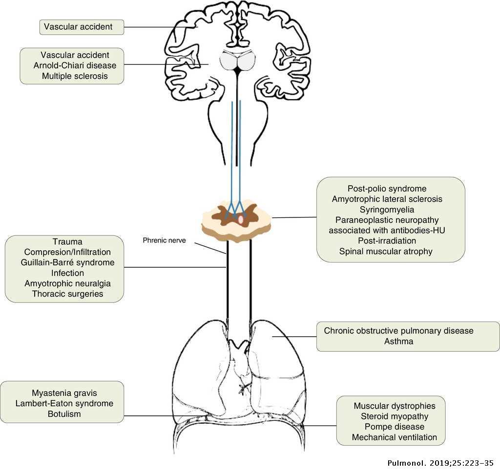 Diaphragmatic dysfunction | Pulmonology