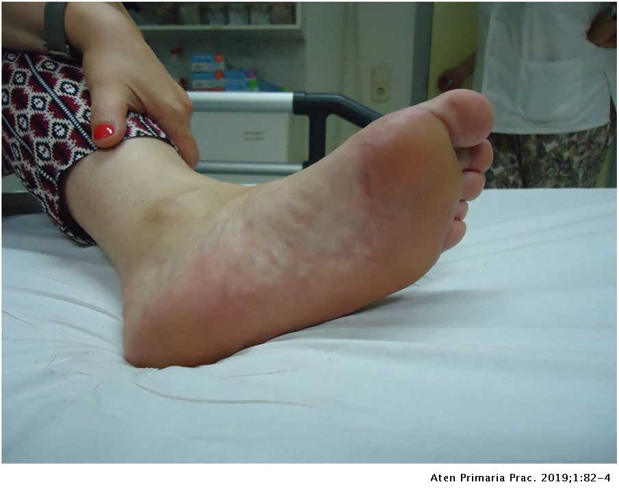 Fibrózis prosztatagyulladás kezelésével