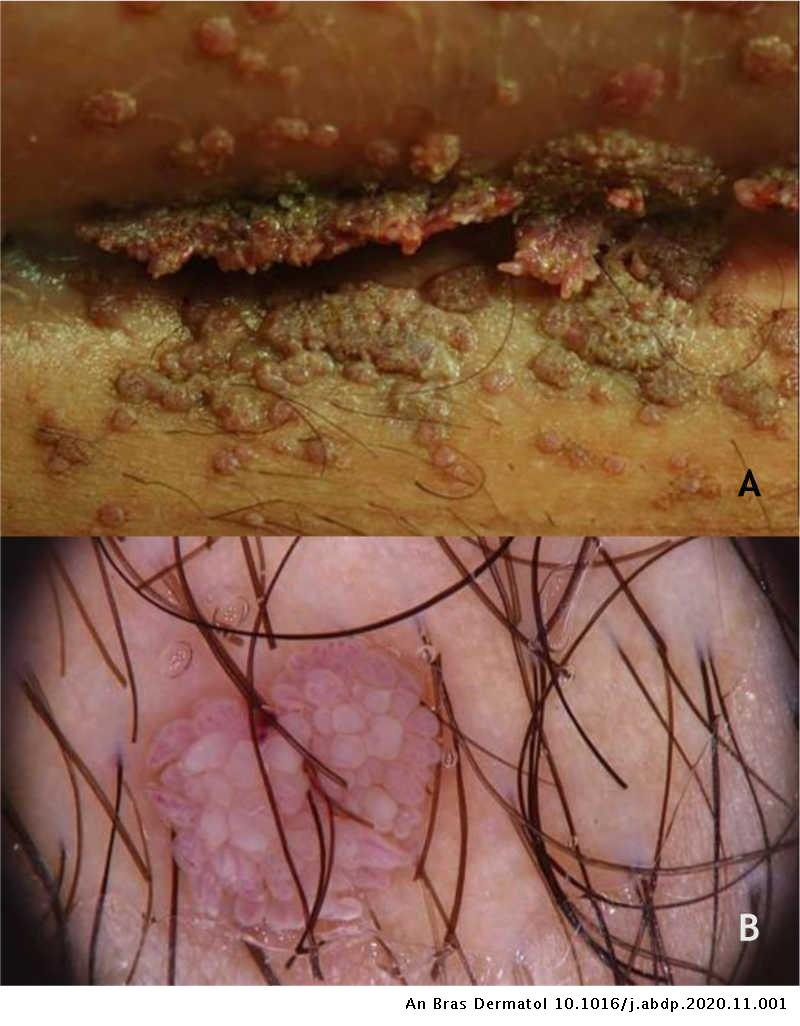 Condiloame uretrale la femei, Excizie condiloame uretrale - Dr. Marcel Rad