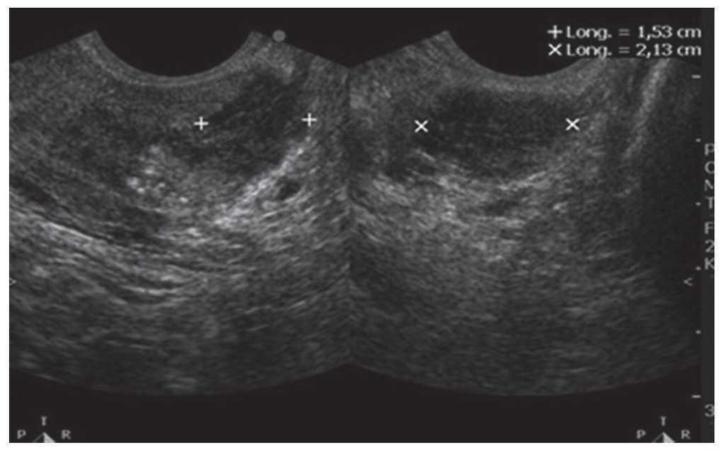 Nódulo de próstata bilobatorio hipoecoico