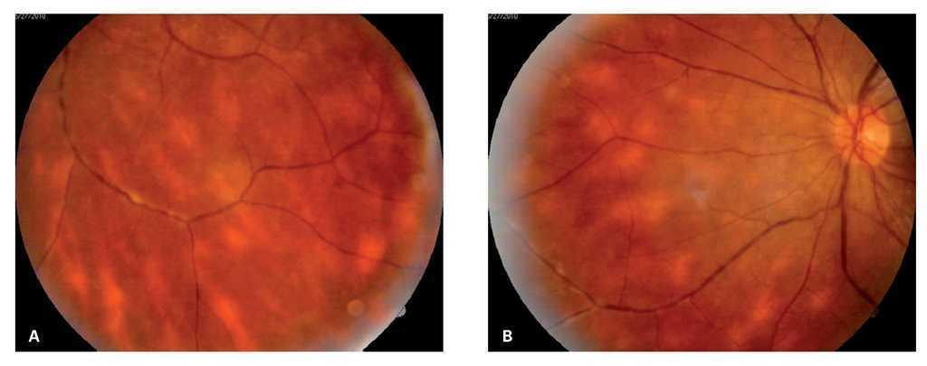 asociación de diabetes con inflamación del disco óptico